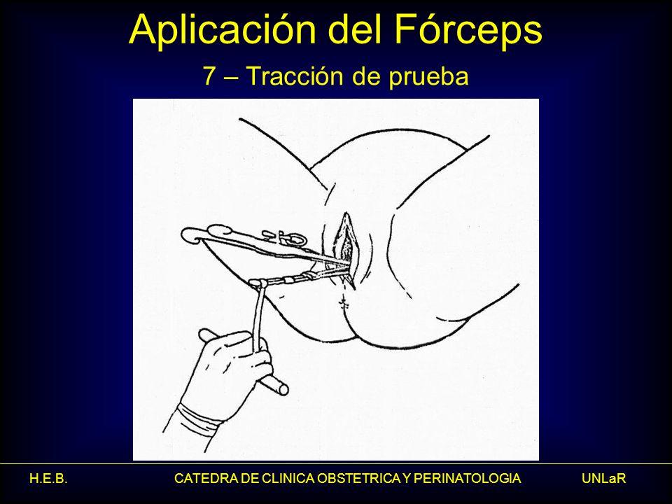 H.E.B. CATEDRA DE CLINICA OBSTETRICA Y PERINATOLOGIA UNLaR Aplicación del Fórceps 7 – Tracción de prueba