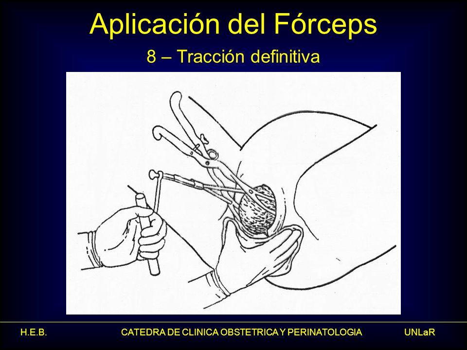 H.E.B. CATEDRA DE CLINICA OBSTETRICA Y PERINATOLOGIA UNLaR Aplicación del Fórceps 8 – Tracción definitiva