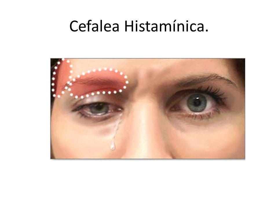 Cefalea Histamínica.