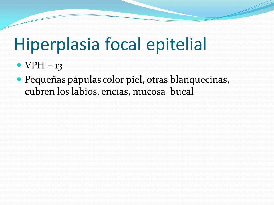 Hiperplasia focal epitelial VPH – 13 Pequeñas pápulas color piel, otras blanquecinas, cubren los labios, encías, mucosa bucal