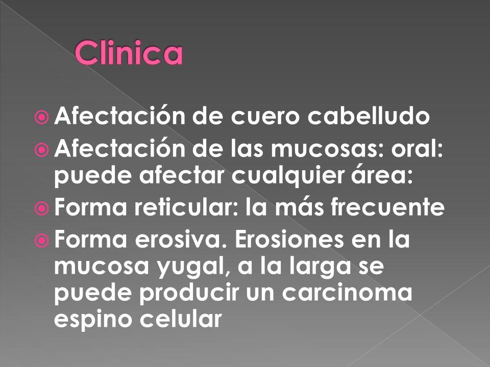 Afectación de cuero cabelludo Afectación de las mucosas: oral: puede afectar cualquier área: Forma reticular: la más frecuente Forma erosiva. Erosione