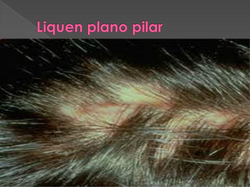 Afectación de cuero cabelludo Afectación de las mucosas: oral: puede afectar cualquier área: Forma reticular: la más frecuente Forma erosiva.