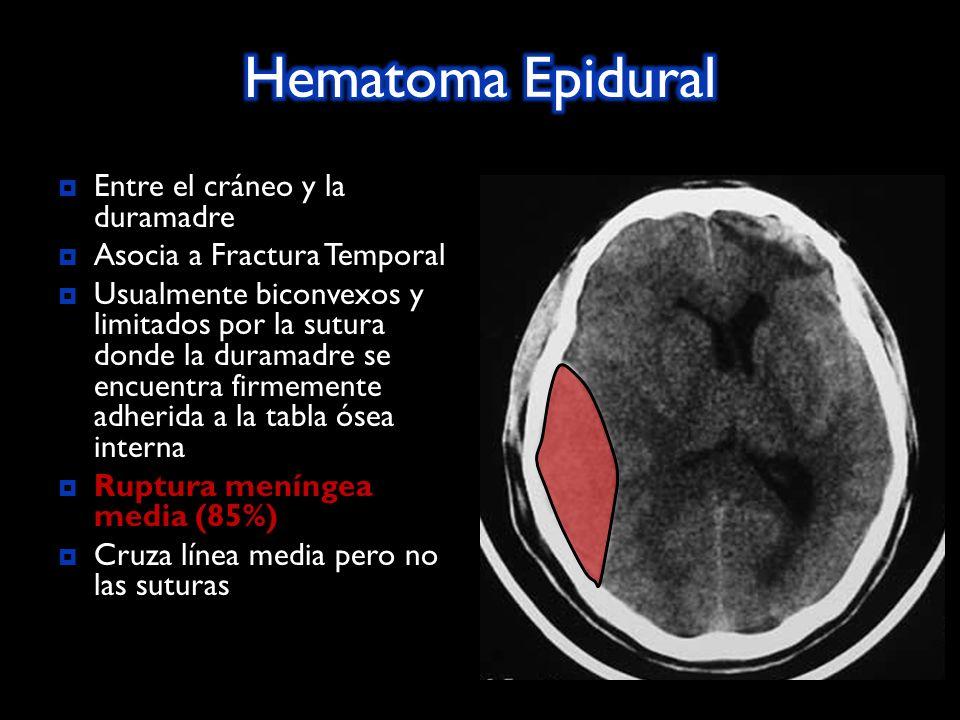 Entre el cráneo y la duramadre Asocia a Fractura Temporal Usualmente biconvexos y limitados por la sutura donde la duramadre se encuentra firmemente adherida a la tabla ósea interna Ruptura meníngea media (85%) Ruptura meníngea media (85%) Cruza línea media pero no las suturas