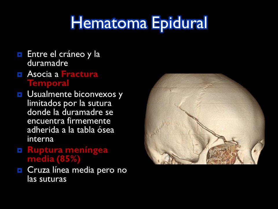Entre el cráneo y la duramadre Fractura Temporal Asocia a Fractura Temporal Usualmente biconvexos y limitados por la sutura donde la duramadre se encuentra firmemente adherida a la tabla ósea interna Ruptura meníngea media (85%) Ruptura meníngea media (85%) Cruza línea media pero no las suturas