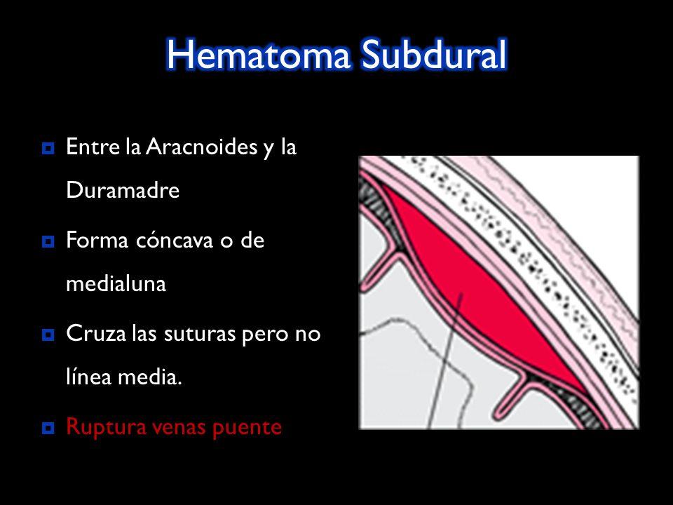 Entre la Aracnoides y la Duramadre Forma cóncava o de medialuna Cruza las suturas pero no línea media.