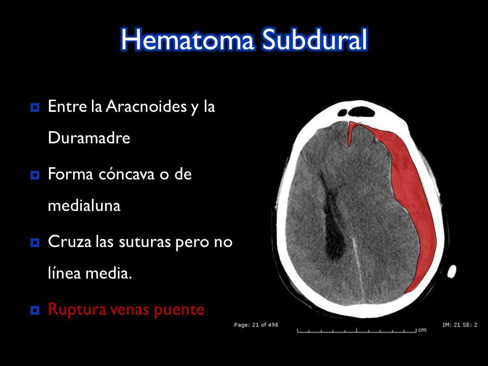Entre la Aracnoides y la Duramadre Forma cóncava o de medialuna Cruza las suturas pero no línea media. Ruptura venas puente Ruptura venas puente