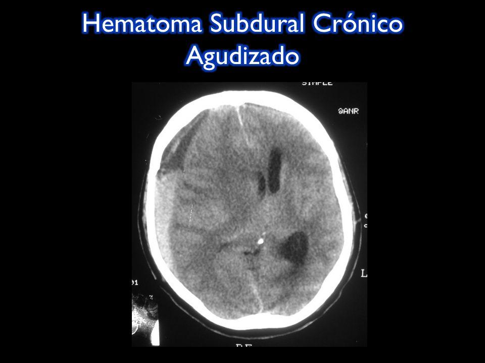 Laceraciones múltiples cerebrales que se observan como hematomas.