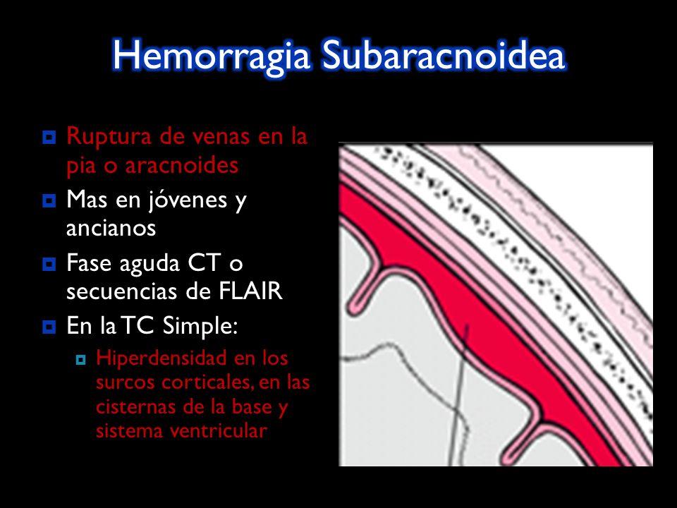 Ruptura de venas en la pia o aracnoides Ruptura de venas en la pia o aracnoides. Mas en jóvenes y ancianos Fase aguda CT o secuencias de FLAIR En la T