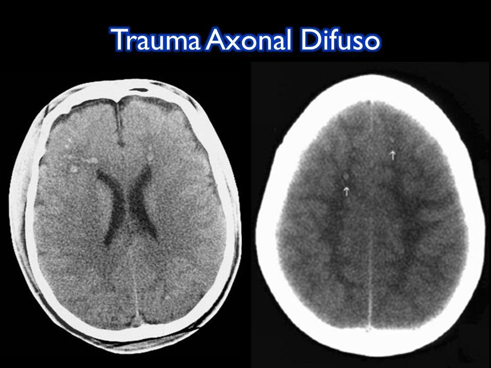 Pérdida transitoria de la conciencia después de un TEC con recuperación completa de ésta y sin daño anatómico.