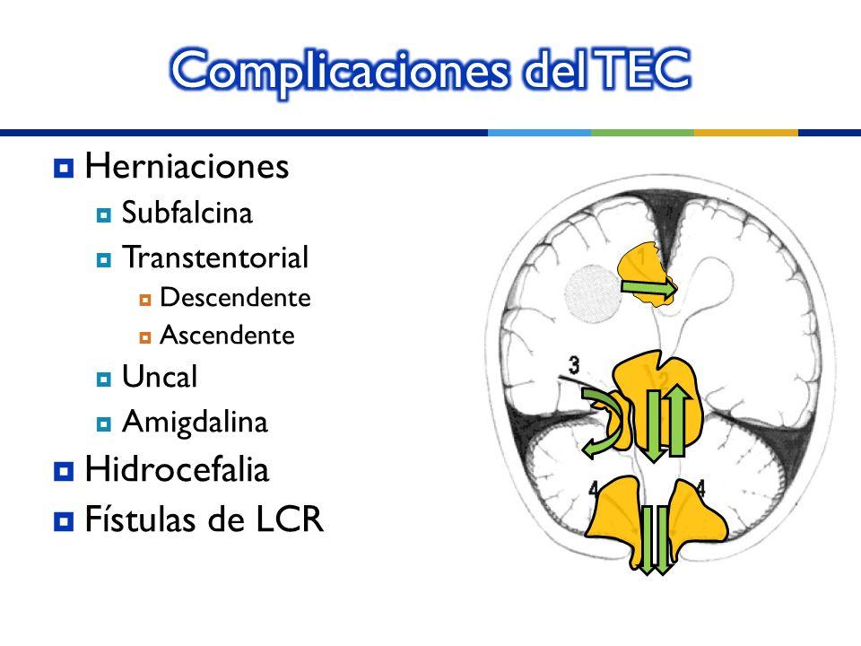 Herniaciones Subfalcina Transtentorial Descendente Ascendente Uncal Amigdalina Hidrocefalia Fístulas de LCR
