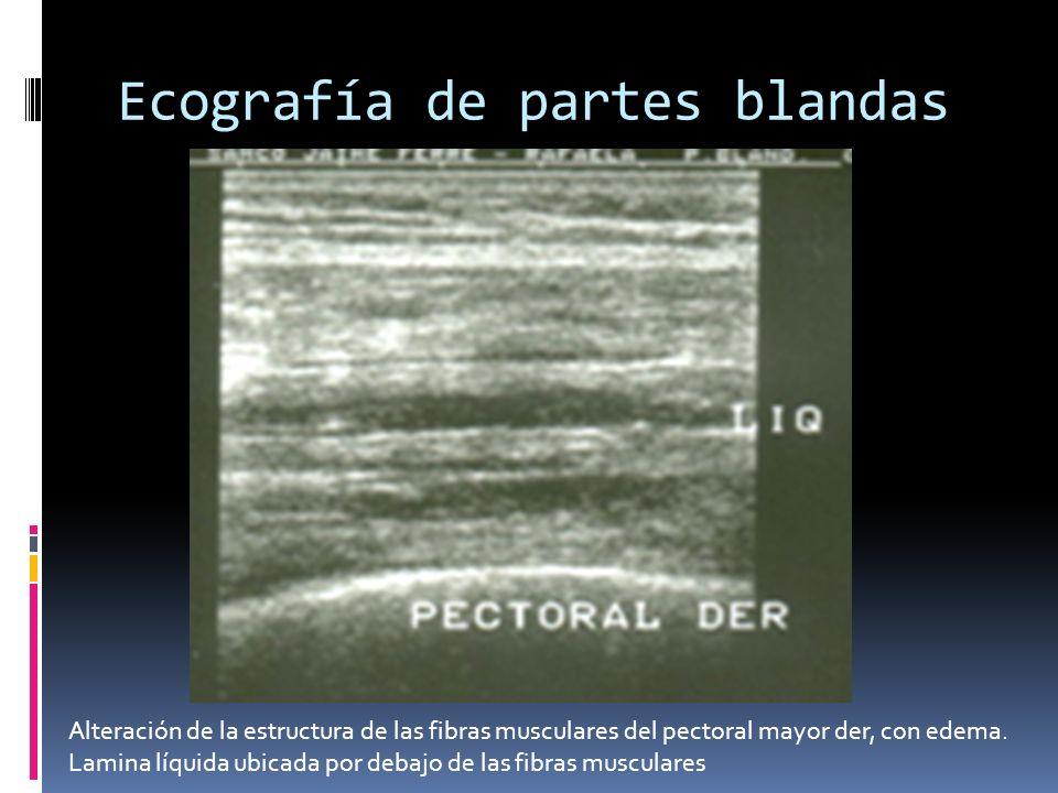 Ecografía de partes blandas Alteración de la estructura de las fibras musculares del pectoral mayor der, con edema. Lamina líquida ubicada por debajo