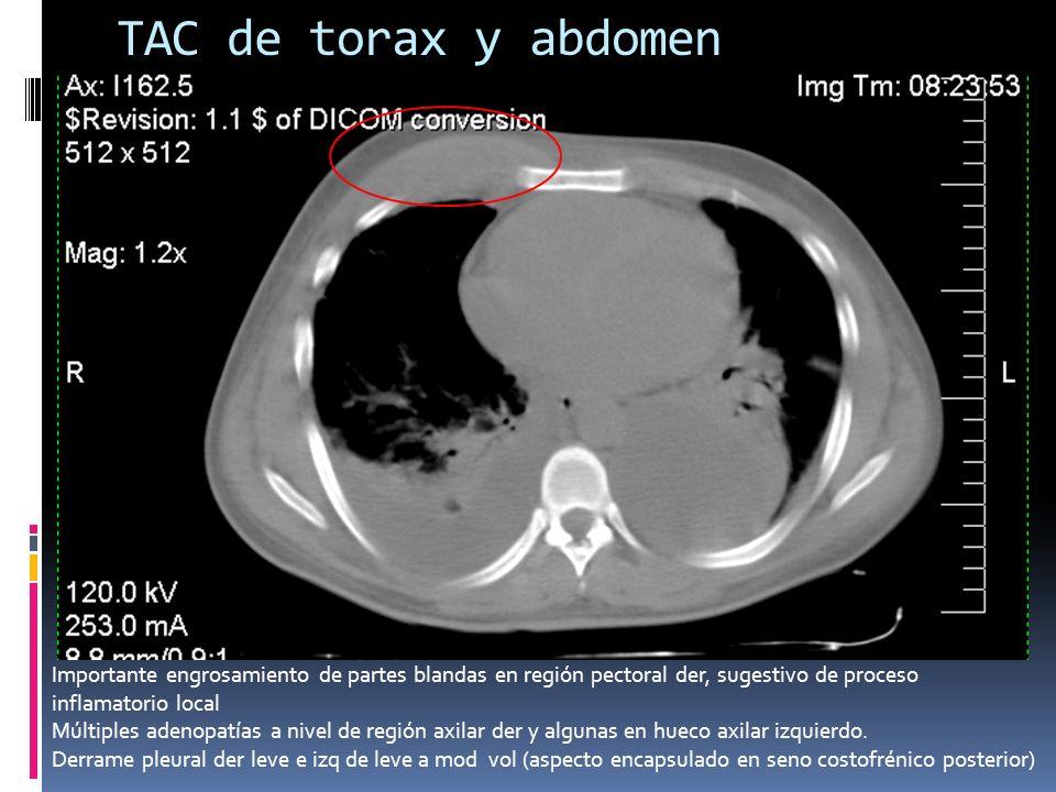TAC de torax y abdomen Importante engrosamiento de partes blandas en región pectoral der, sugestivo de proceso inflamatorio local Múltiples adenopatía