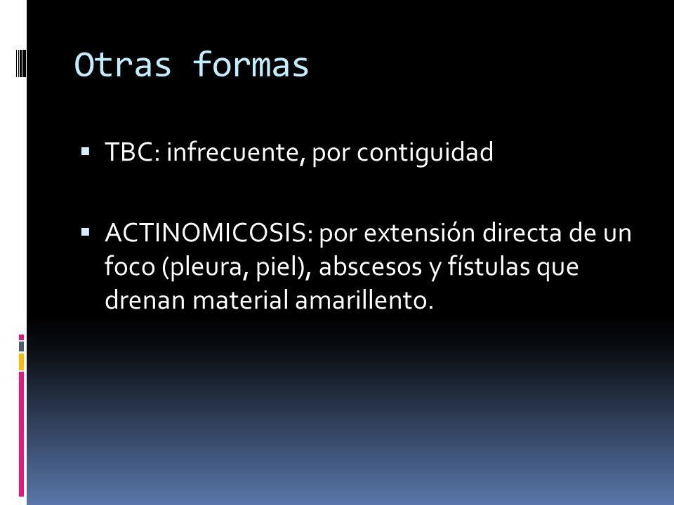 Otras formas TBC: infrecuente, por contiguidad ACTINOMICOSIS: por extensión directa de un foco (pleura, piel), abscesos y fístulas que drenan material