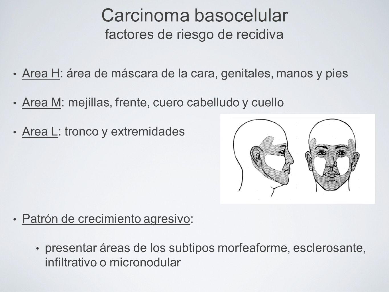 Carcinoma basocelular factores de riesgo de recidiva Area H: área de máscara de la cara, genitales, manos y pies Area M: mejillas, frente, cuero cabel