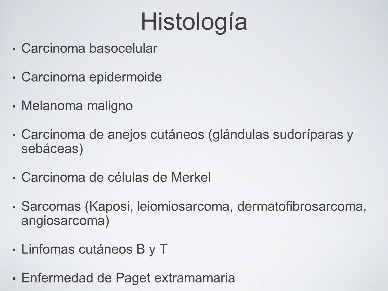 Histología Carcinoma basocelular Carcinoma epidermoide Melanoma maligno Carcinoma de anejos cutáneos (glándulas sudoríparas y sebáceas) Carcinoma de c