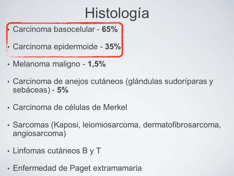 Histología Carcinoma basocelular - 65% Carcinoma epidermoide - 35% Melanoma maligno - 1,5% Carcinoma de anejos cutáneos (glándulas sudoríparas y sebác