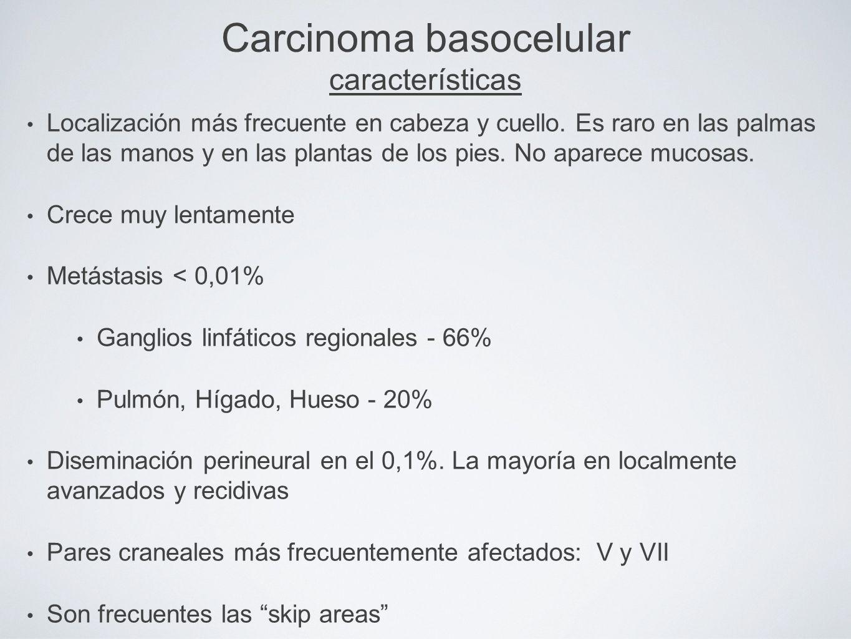 Carcinoma basocelular características Localización más frecuente en cabeza y cuello. Es raro en las palmas de las manos y en las plantas de los pies.