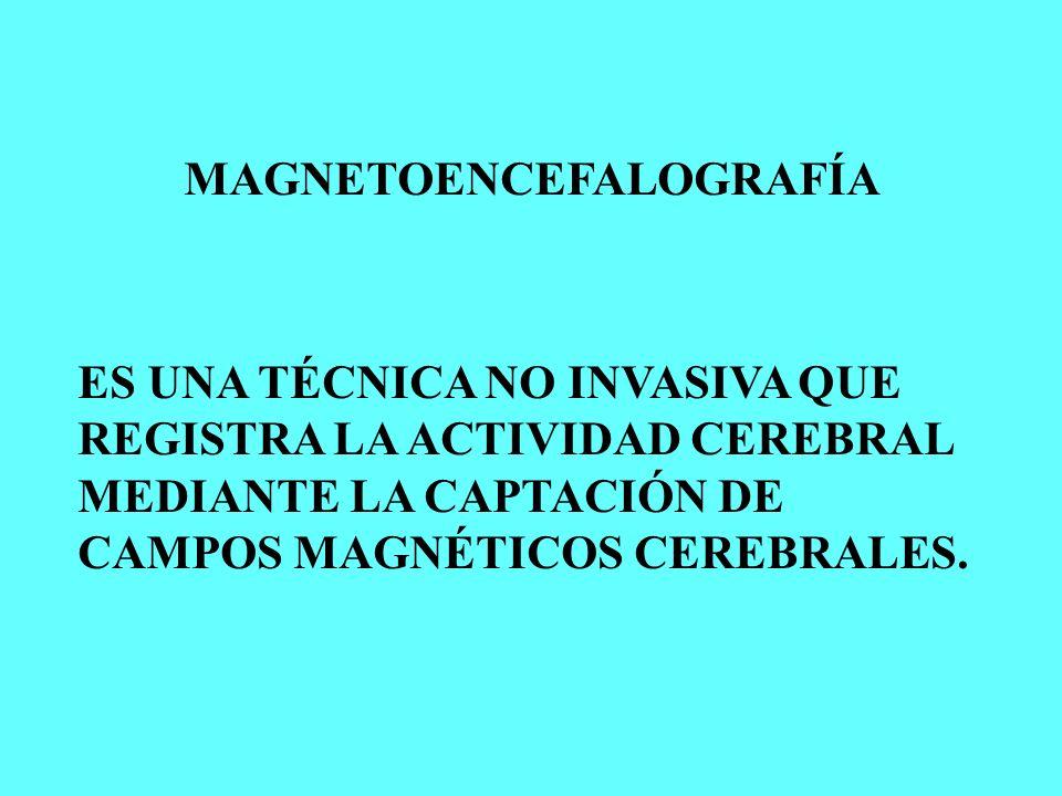 MAGNETOENCEFALOGRAFÍA ES UNA TÉCNICA NO INVASIVA QUE REGISTRA LA ACTIVIDAD CEREBRAL MEDIANTE LA CAPTACIÓN DE CAMPOS MAGNÉTICOS CEREBRALES.