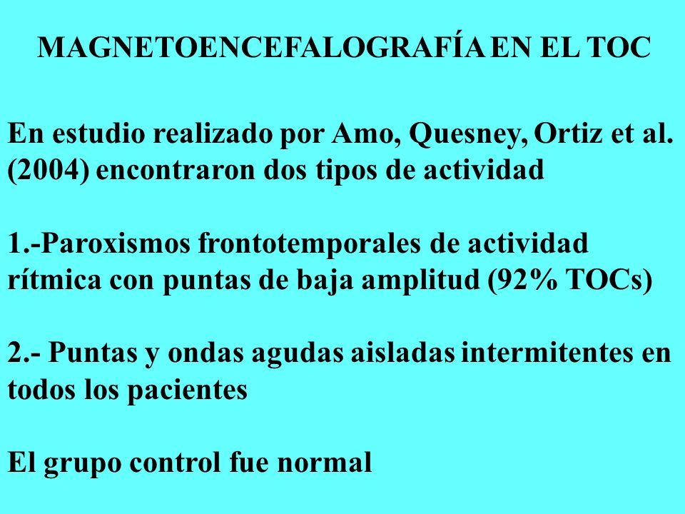 MAGNETOENCEFALOGRAFÍA EN EL TOC En estudio realizado por Amo, Quesney, Ortiz et al. (2004) encontraron dos tipos de actividad 1.-Paroxismos frontotemp