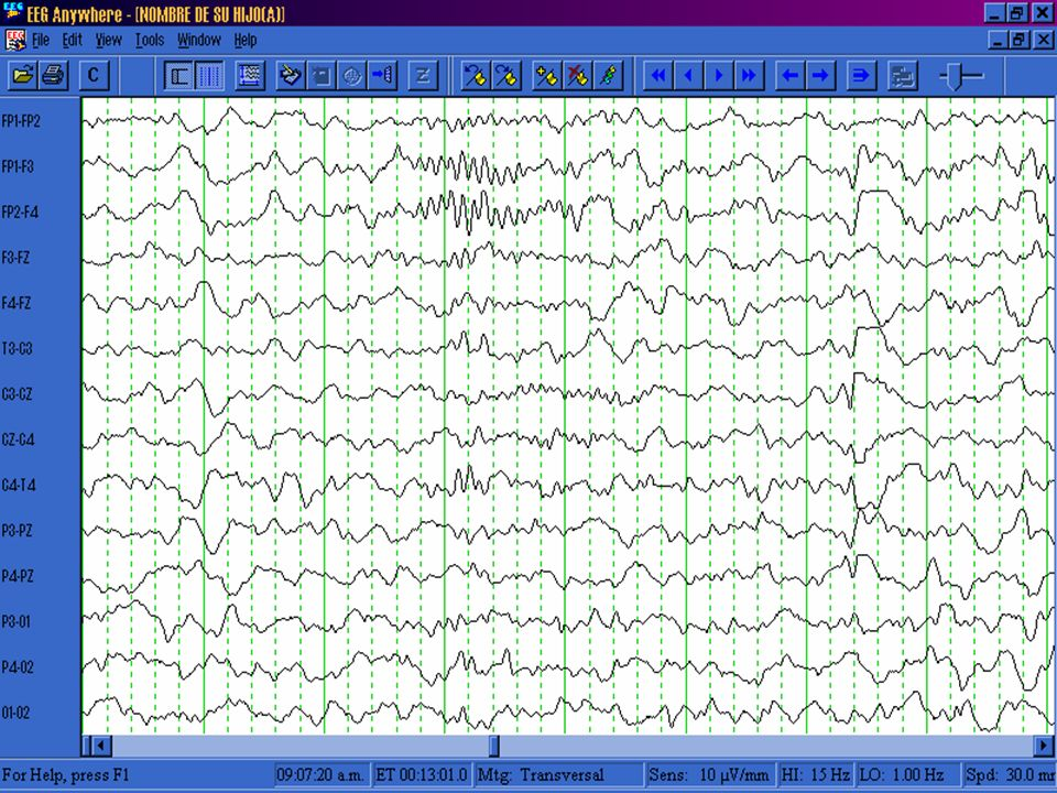 EEG en el TOC No existen anomalías específicas Esencialmente sirven para descartar la existencia de otras patologías cerebrales (epilepsia)