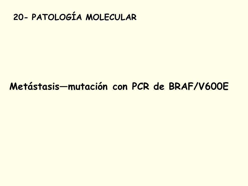 20- PATOLOGÍA MOLECULAR Metástasismutación con PCR de BRAF/V600E