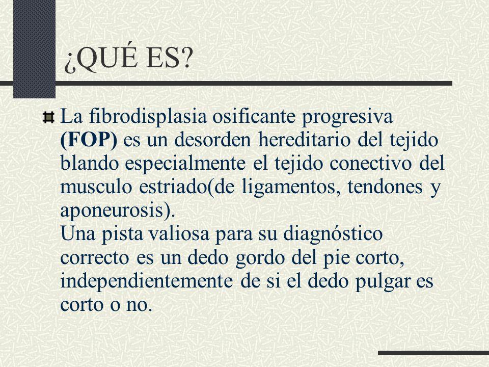 ¿QUÉ ES? La fibrodisplasia osificante progresiva (FOP) es un desorden hereditario del tejido blando especialmente el tejido conectivo del musculo estr
