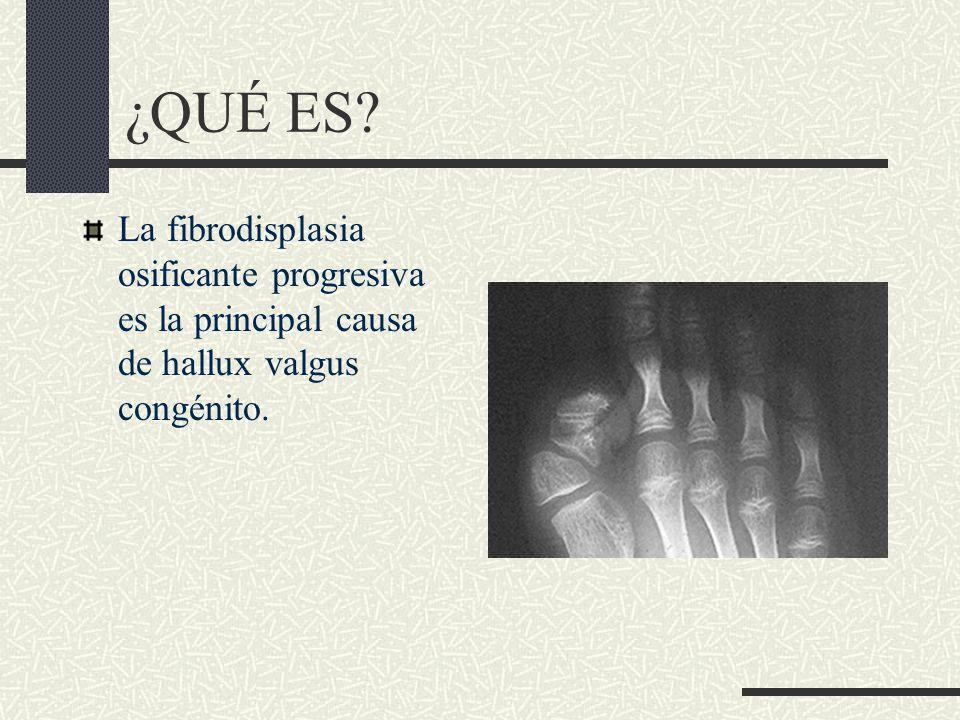 CARACTERÍSTICAS -I Entre las características que ayudan a su detección encontramos: 1- Malformación congénita de los dedos gordos de los pies monofalángicos conocidos como juanetes 2- Amplios cuellos femorales 3- Primeros huesos metacarpianos cortos 4- Formación postnatal de huesos en lugares no usuales (Estos huesos localizados en sitios no usuales son química y histológicamente idénticos a un hueso normal) que puede ocurrir después de golpes locales, pero más frecuentemente son espontáneos.