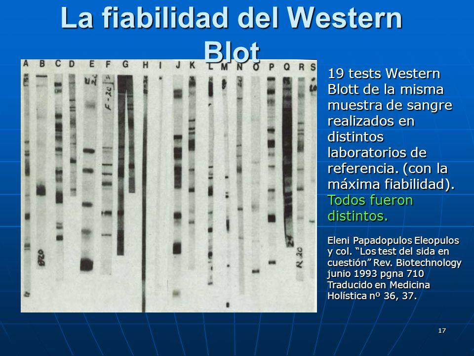 17 La fiabilidad del Western Blot 19 tests Western Blott de la misma muestra de sangre realizados en distintos laboratorios de referencia. (con la máx