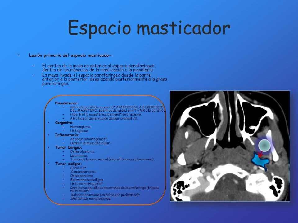 Espacio masticador Lesión primaria del espacio masticador: –El centro de la masa es anterior al espacio parafaríngeo, dentro de los músculos de la mas