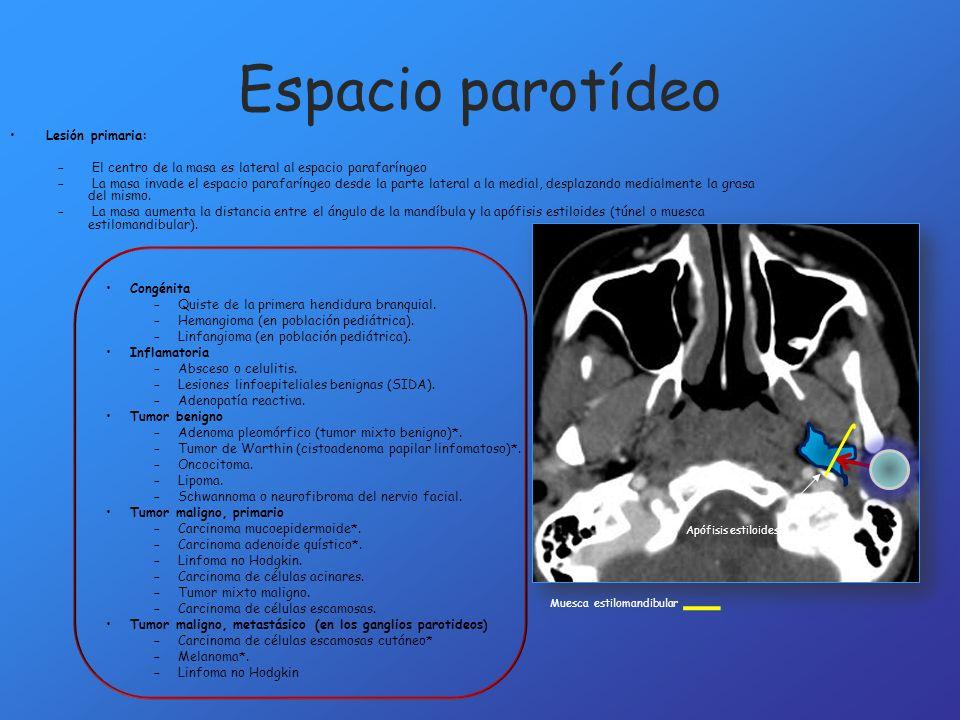 Espacio parotídeo Lesión primaria: – El centro de la masa es lateral al espacio parafaríngeo – La masa invade el espacio parafaríngeo desde la parte l