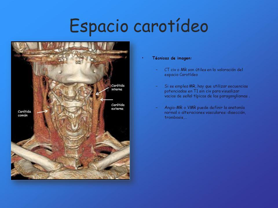 Espacio carotídeo Técnicas de imagen: –CT civ o MR son útiles en la valoración del espacio Carotídeo –Si se emplea MR, hay que utilizar secuencias pot