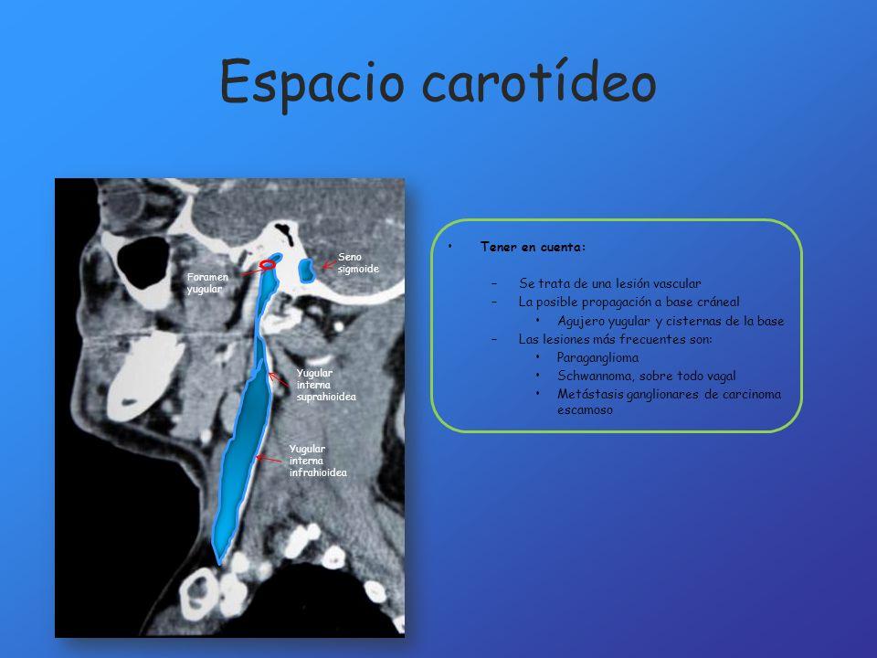 Espacio carotídeo Tener en cuenta: –Se trata de una lesión vascular –La posible propagación a base cráneal Agujero yugular y cisternas de la base –Las