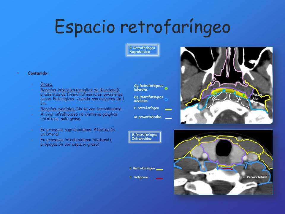 Espacio retrofaríngeo Contenido: –Grasa. –Ganglios laterales (ganglios de Rouviere): presentes de forma rutinaria en pacientes sanos. Patológicos cuan