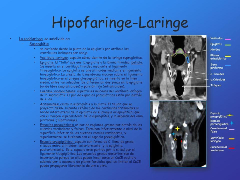 Hipofaringe-Laringe La endolaringe: se subdivide en: –Supraglótis: se extiende desde la punta de la epiglotis por arriba a los ventrículos laríngeos p