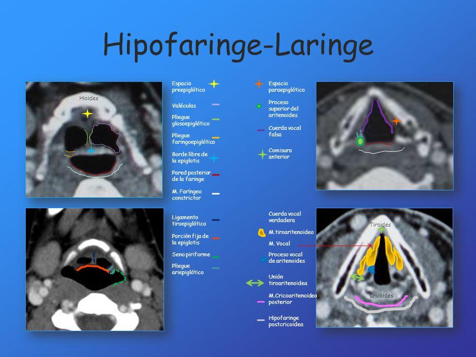 Hipofaringe-Laringe Valéculas Pliegue glosoepiglótico Espacio preepiglótico Pliegue faringoepiglótico Borde libre de la epiglotis Pared posterior de l