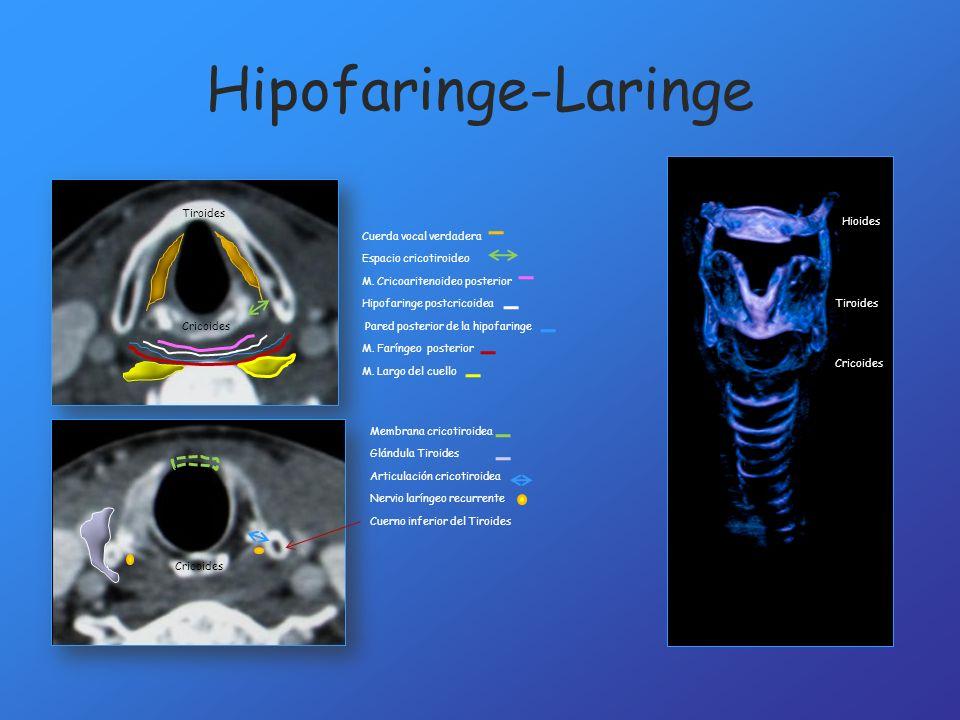 Hipofaringe-Laringe Tiroides Cricoides Cuerno inferior del Tiroides Membrana cricotiroidea Cuerda vocal verdadera Espacio cricotiroideo M. Cricoariten