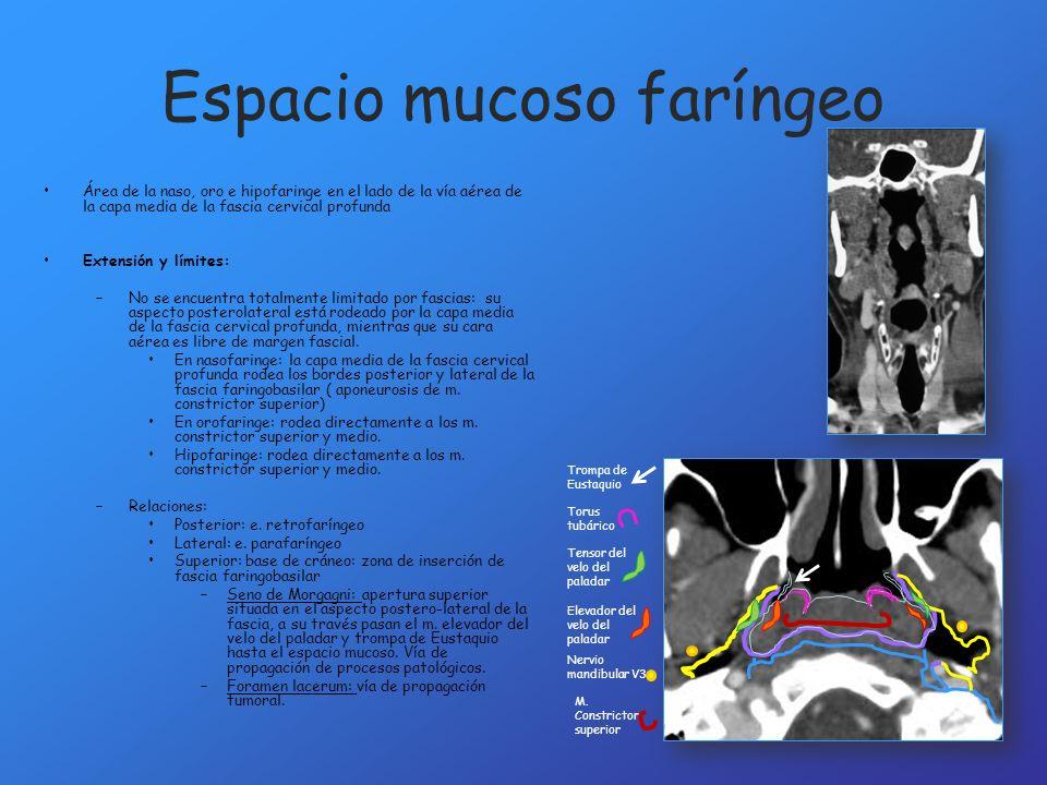 Espacio parotídeo Lesión primaria: – El centro de la masa es lateral al espacio parafaríngeo – La masa invade el espacio parafaríngeo desde la parte lateral a la medial, desplazando medialmente la grasa del mismo.