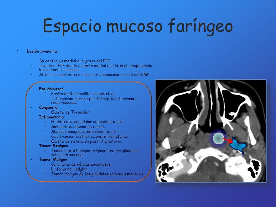 Espacio mucoso faríngeo Lesión primaria: –Su centro es medial a la grasa del EPF –Invade el EPF desde la parte medial a la lateral, desplazando latera