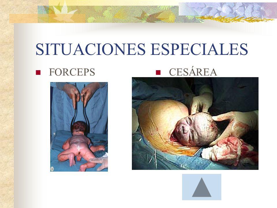Métodos para aliviar el dolor Analgesia Endovenosa: Anestesia local Anestesia General: Bloqueo Paracervical: Bloqueo Epidural: