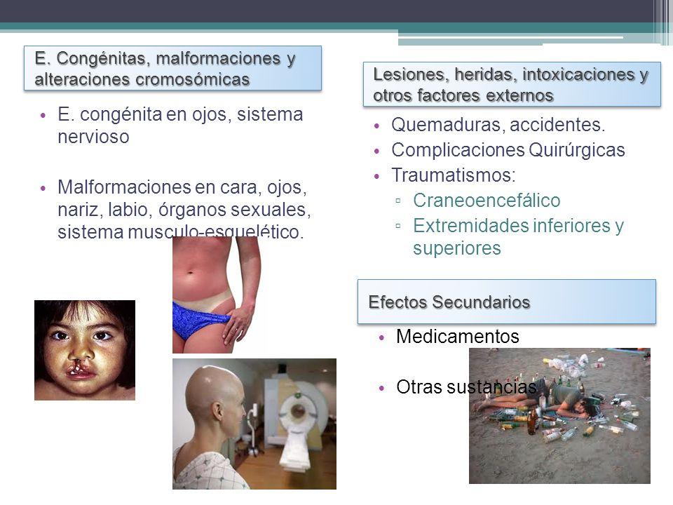 E. Congénitas, malformaciones y alteraciones cromosómicas Lesiones, heridas, intoxicaciones y otros factores externos E. congénita en ojos, sistema ne