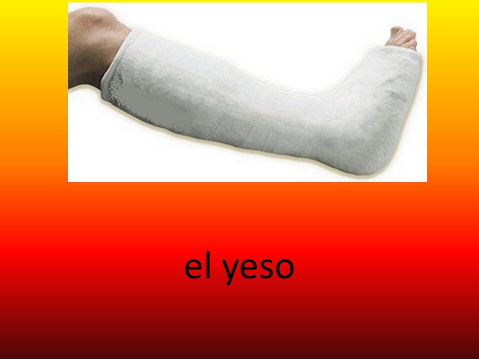 el yeso