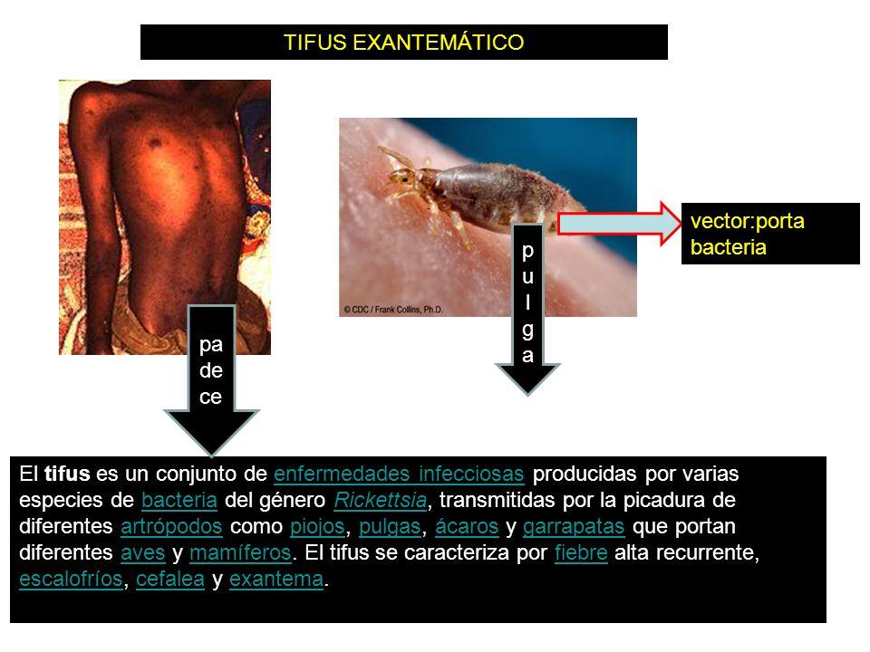 El tifus es un conjunto de enfermedades infecciosas producidas por varias especies de bacteria del género Rickettsia, transmitidas por la picadura de