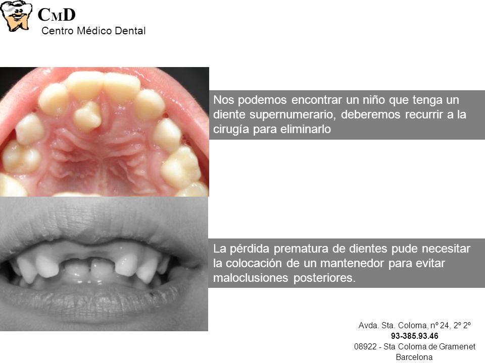 Avda. Sta. Coloma, nº 24, 2º 2º 93-385.93.46 08922 - Sta Coloma de Gramenet Barcelona CMDCMD Centro Médico Dental Nos podemos encontrar un niño que te