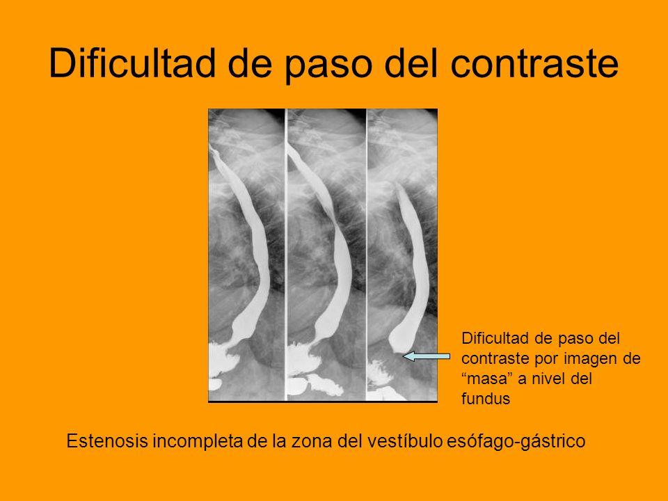 Dificultad de paso del contraste Estenosis incompleta de la zona del vestíbulo esófago-gástrico Dificultad de paso del contraste por imagen de masa a