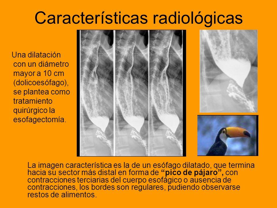 Características radiológicas La imagen característica es la de un esófago dilatado, que termina hacia su sector más distal en forma de pico de pájaro,