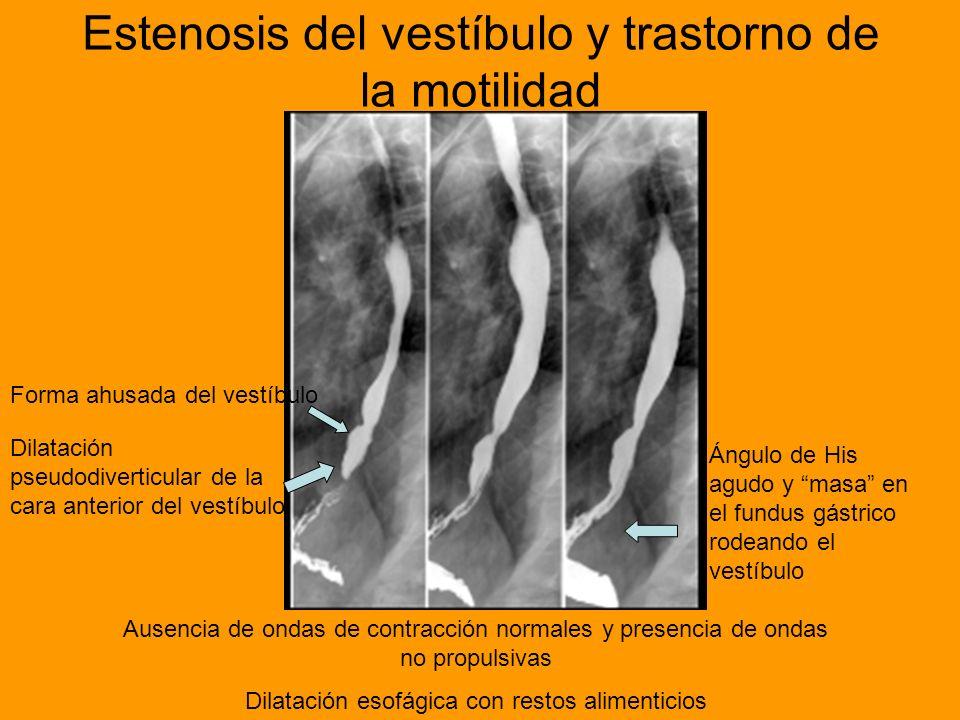 Estenosis del vestíbulo y trastorno de la motilidad Forma ahusada del vestíbulo Dilatación pseudodiverticular de la cara anterior del vestíbulo Ángulo