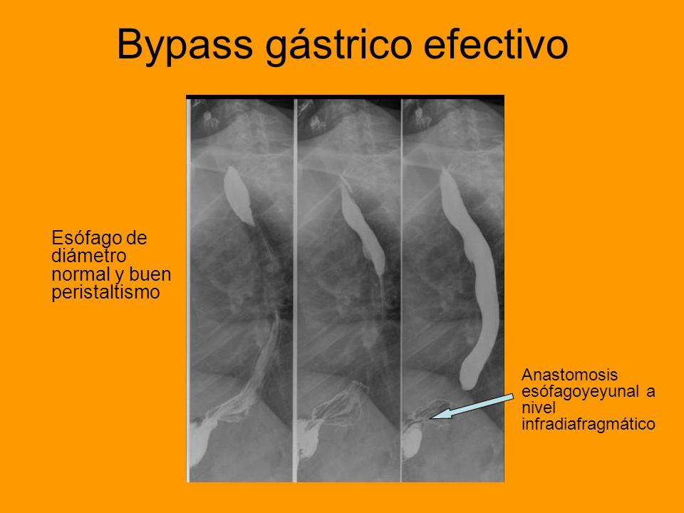 Bypass gástrico efectivo Esófago de diámetro normal y buen peristaltismo Anastomosis esófagoyeyunal a nivel infradiafragmático
