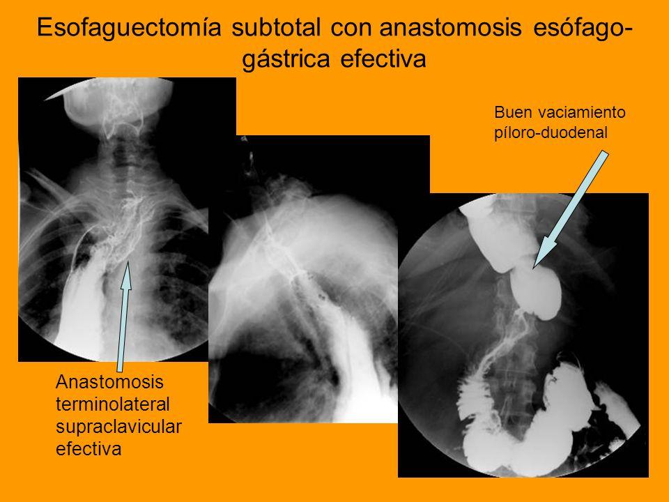 Esofaguectomía subtotal con anastomosis esófago- gástrica efectiva Anastomosis terminolateral supraclavicular efectiva Buen vaciamiento píloro-duodena
