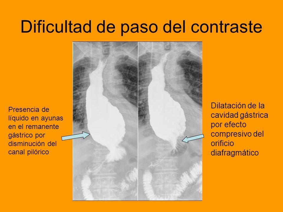 Dificultad de paso del contraste Dilatación de la cavidad gástrica por efecto compresivo del orificio diafragmático Presencia de líquido en ayunas en