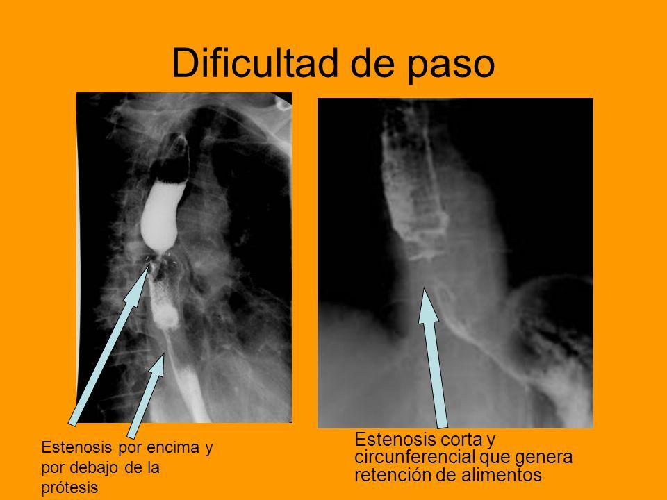 Estenosis corta y circunferencial que genera retención de alimentos Estenosis por encima y por debajo de la prótesis